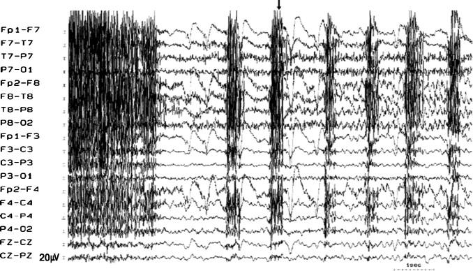 musicogenic seizures